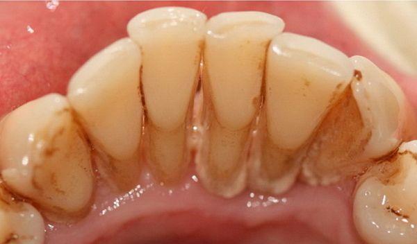 Наліт на зубах