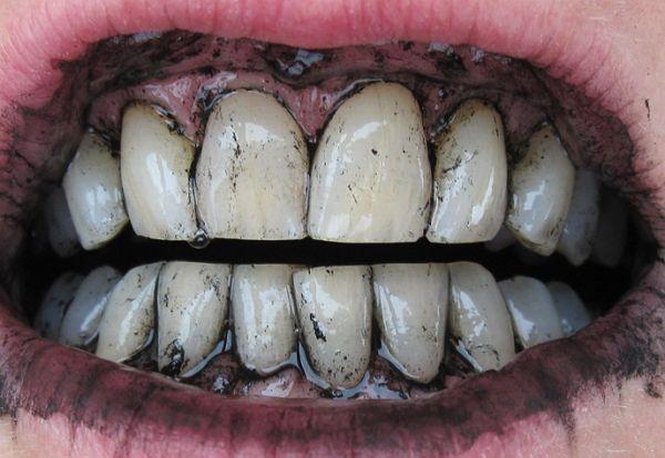 Рецепт відбілювання зубів активованим вугіллям